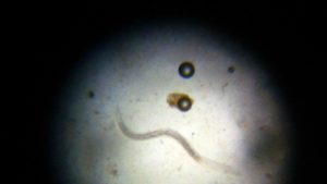 Horse worm under microscope